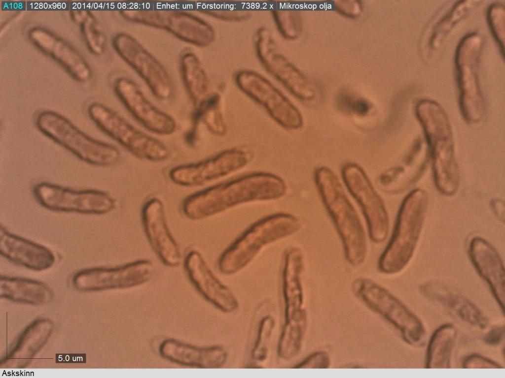 Allantoida sporer hos askskinn. Björksnaret 14/4 2014 Mikroskopi: Lars Bsenko