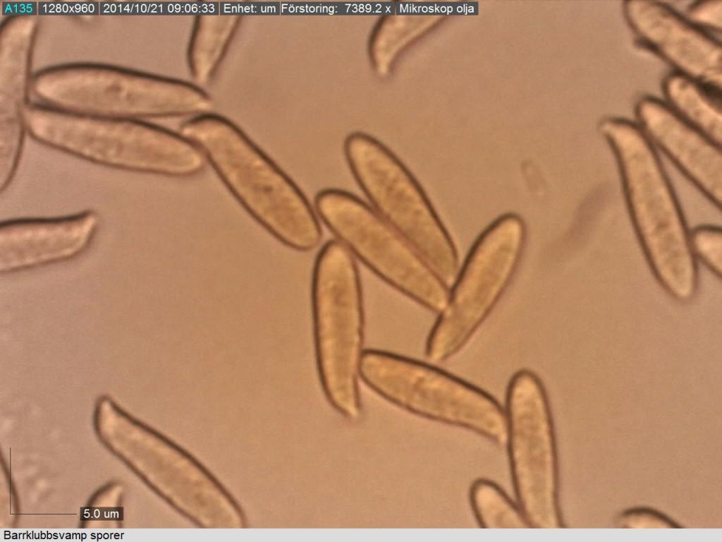 Sporerna ligger i intervallet 12-16/3-4 mikrometer. Miukroskopi: Lars Bsenko