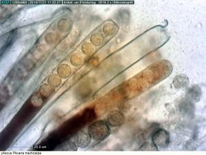 En tömd ascus. Sporsäcken har öppnat sig med ett lock.   Väggarna hos asci är blåfärgade i jod dvs. amyloida. St Gräsgården 19/11 2014. Mikroskopi: Lars Bsenko